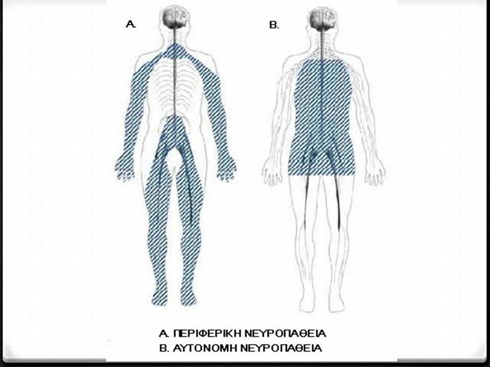 0 Σε μερικές περιπτώσεις μόνο ένα νεύρο ή μια ομάδα σχετιζόμενων νεύρων εμπλέκονται στη νευροπάθεια.