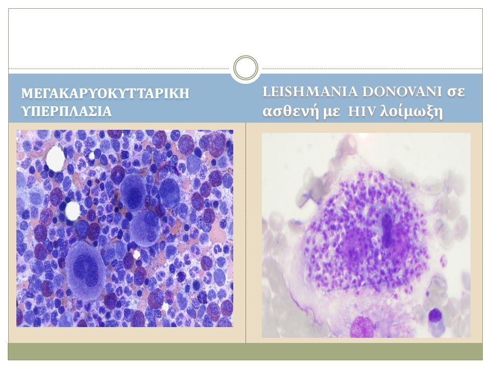ΜΕΓΑΚΑΡΥΟΚΥΤΤΑΡΙΚΗ ΥΠΕΡΠΛΑΣΙΑ LEISHMANIA DONOVANI σε ασθενή με HIV λοίμωξη