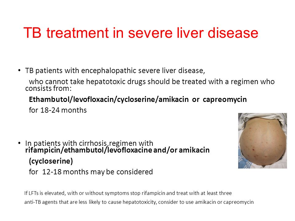 TB treatment in severe liver disease TB patients with encephalopathic severe liver disease, who cannot take hepatotoxic drugs should be treated with a regimen who consists from: Ethambutol/levofloxacin/cycloserine/amikacin or capreomycin for 18-24 months In patients with cirrhosis,regimen with rifampicin/ethambutol/levofloxacine and/or amikacin (cycloserine) for 12-18 months may be considered If LFTs is elevated, with or without symptoms stop rifampicin and treat with at least three anti-TB agents that are less likely to cause hepatotoxicity, consider to use amikacin or capreomycin AJRCCM 2006,174:935-952