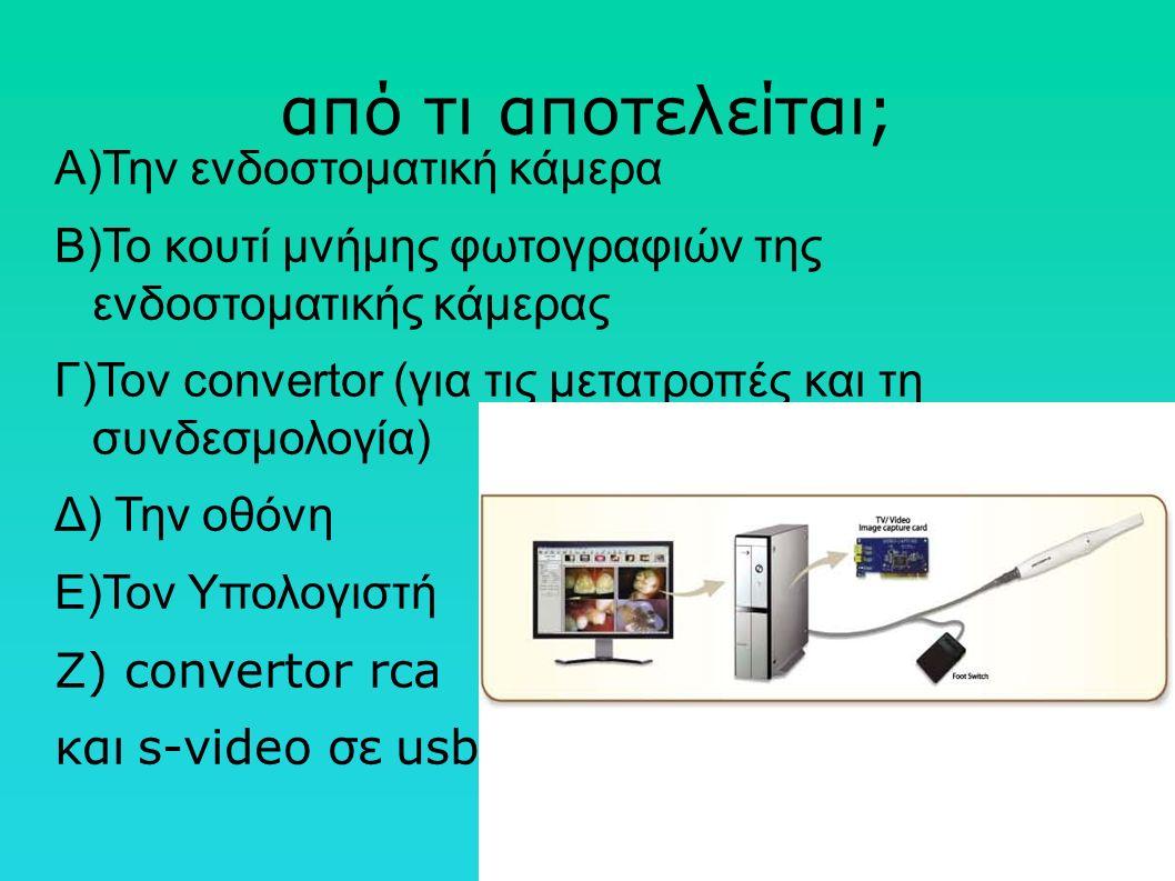 από τι αποτελείται; Α)Την ενδοστοματική κάμερα Β)Το κουτί μνήμης φωτογραφιών της ενδοστοματικής κάμερας Γ)Τον convertor (για τις μετατροπές και τη συνδεσμολογία) Δ) Την οθόνη E)Τον Yπολογιστή Ζ) convertor rca και s-video σε usb