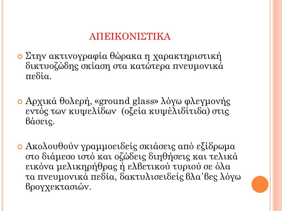 ΑΠΕΙΚΟΝΙΣΤΙΚΑ Στην ακτινογραφία θώρακα η χαρακτηριστική δικτυοζώδης σκίαση στα κατώτερα πνευμονικά πεδία. Αρχικά θολερή, «ground glass» λόγω φλεγμονής