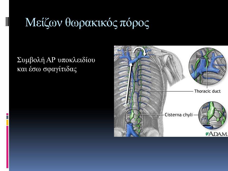 Μείζων θωρακικός πόρος Συμβολή ΑΡ υποκλειδίου και έσω σφαγίτιδας