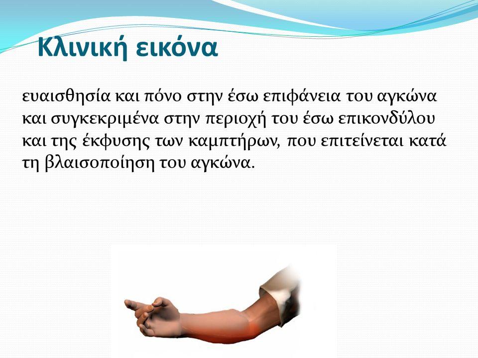 Κλινική εικόνα ευαισθησία και πόνο στην έσω επιφάνεια του αγκώνα και συγκεκριμένα στην περιοχή του έσω επικονδύλου και της έκφυσης των καμπτήρων, που επιτείνεται κατά τη βλαισοποίηση του αγκώνα.