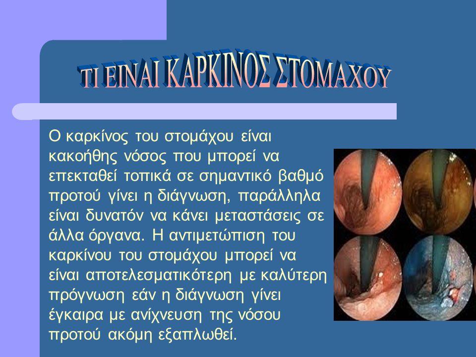 Ο καρκίνος του στομάχου είναι κακοήθης νόσος που μπορεί να επεκταθεί τοπικά σε σημαντικό βαθμό προτού γίνει η διάγνωση, παράλληλα είναι δυνατόν να κάν
