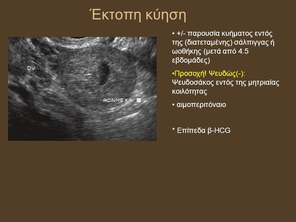 Έκτοπη κύηση +/- παρουσία κυήματος εντός της (διατεταμένης) σάλπιγγας ή ωοθήκης (μετά από 4.5 εβδομάδες) Προσοχή.