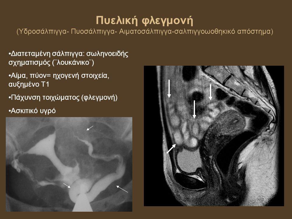 Πυελική φλεγμονή (Υδροσάλπιγγα- Πυοσάλπιγγα- Αιματοσάλπιγγα-σαλπιγγοωοθηκικό απόστημα) Διατεταμένη σάλπιγγα: σωληνοειδής σχηματισμός (¨λουκάνικο¨) Αίμα, πύον= ηχογενή στοιχεία, αυξημένο Τ1 Πάχυνση τοιχώματος (φλεγμονή) Ασκιτικό υγρό