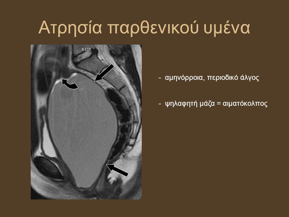 Ατρησία παρθενικού υμένα - αμηνόρροια, περιοδικό άλγος - ψηλαφητή μάζα = αιματόκολπος