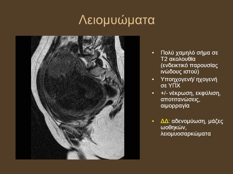 Λειομυώματα Πολύ χαμηλό σήμα σε Τ2 ακολουθία (ενδεικτικό παρουσίας ινώδους ιστού) Υποηχογενή/ ηχογενή σε ΥΠΧ +/- νέκρωση, εκφύλιση, αποτιτανώσεις, αιμορραγία ΔΔ: αδενομύωση, μάζες ωοθηκών, λειομυοσαρκώματα