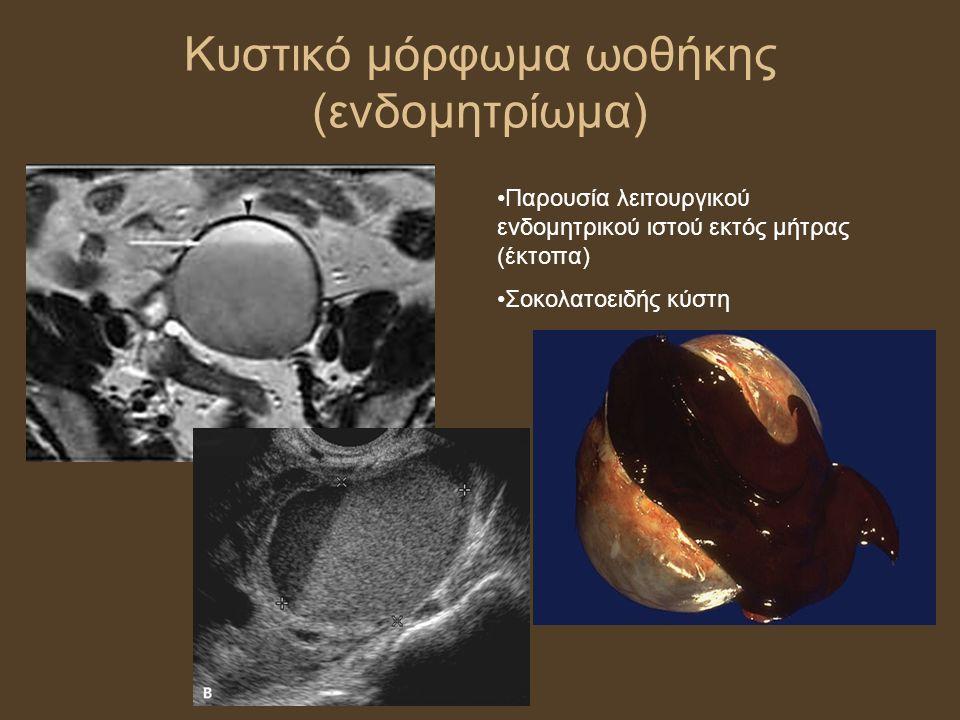 Κυστικό μόρφωμα ωοθήκης (ενδομητρίωμα) Παρουσία λειτουργικού ενδομητρικού ιστού εκτός μήτρας (έκτοπα) Σοκολατοειδής κύστη