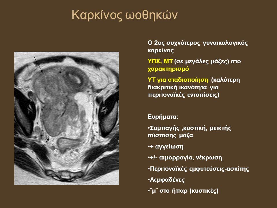 Καρκίνος ωοθηκών Ο 2ος συχνότερος γυναικολογικός καρκίνος ΥΠΧ, ΜΤ (σε μεγάλες μάζες) στο χαρακτηρισμό ΥΤ για σταδιοποίηση (καλύτερη διακριτική ικανότητα για περιτοναϊκές εντοπίσεις) Ευρήματα: Συμπαγής,κυστική, μεικτής σύστασης μάζα + αγγείωση +/- αιμορραγία, νέκρωση Περιτοναϊκές εμφυτεύσεις-ασκίτης Λεμφαδένες ¨μ¨ στο ήπαρ (κυστικές)