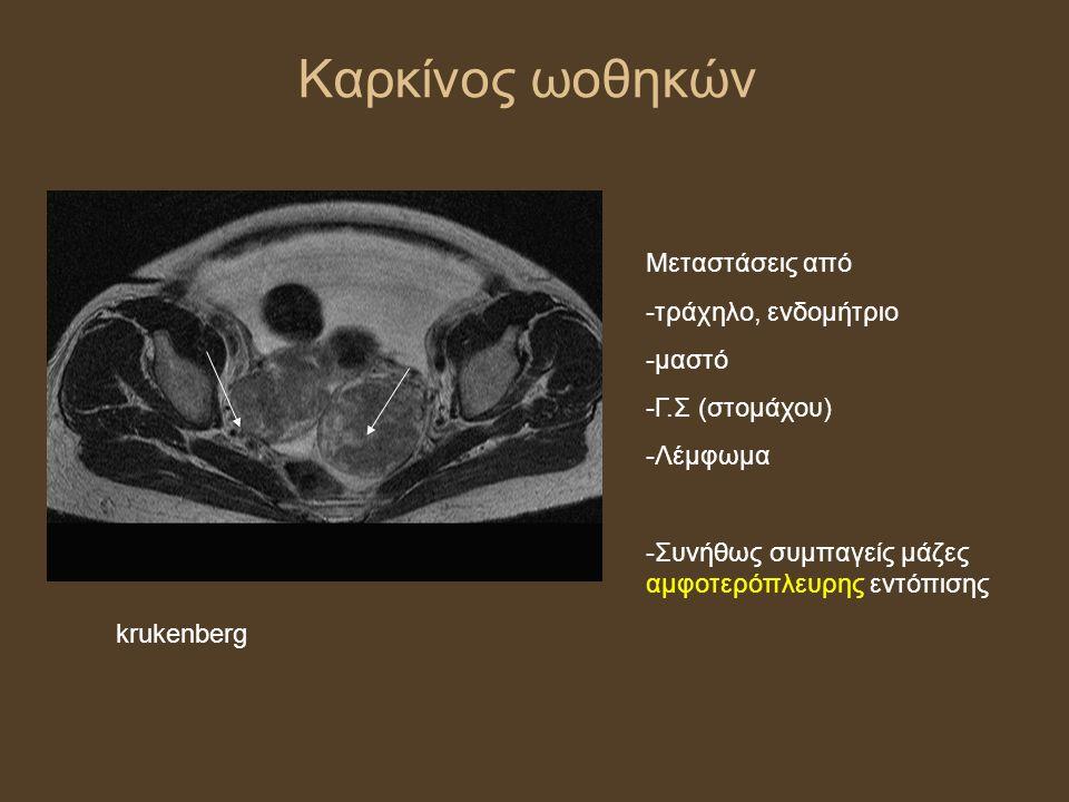 Καρκίνος ωοθηκών Μεταστάσεις από -τράχηλο, ενδομήτριο -μαστό -Γ.Σ (στομάχου) -Λέμφωμα -Συνήθως συμπαγείς μάζες αμφοτερόπλευρης εντόπισης krukenberg