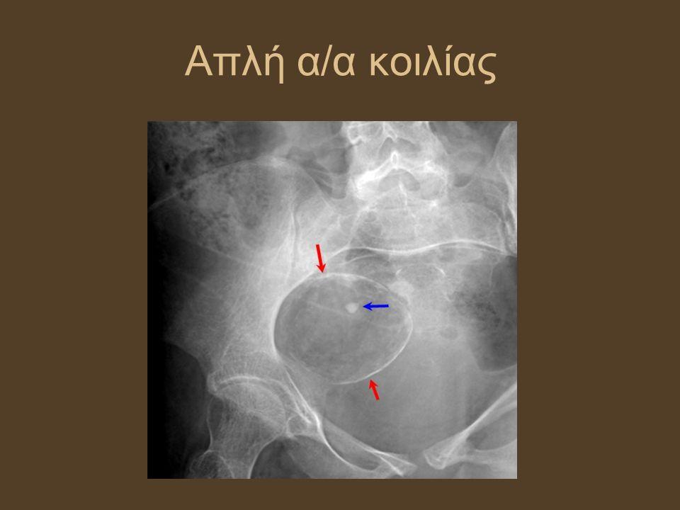 ΥΣΤΕΡΟΣΑΛΠΙΓΓΟΓΡΑΦΙΑ Απεικόνιση μητριαίας κοιλότητας-σαλπίγγων Ένδειξη: διερεύνηση στειρότητας (βατότητα σαλπίγγων, συμφύσεις) Αντενδείξεις: ενεργός πυελική φλεγμονή, εγκυμοσύνη, πρόσφατη απόξεση, καρδιακή/ νεφρική νόσος, αλλεργία σε ιωδιούχο σκιαγραφικό Επιπλοκές: άλγος, πυελική λοίμωξη (προφυλακτικά αντιβίωση)
