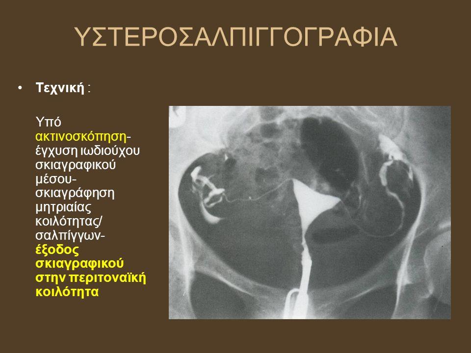 ΥΠΕΡΗΧΟΤΟΜΟΓΡΑΦΙΑ Αρχική μέθοδος για απεικόνιση ελάσσονος πυέλου Ασφαλής, ευρέως διαθέσιμη, χαμηλού κόστους Ενδείξεις: - εκτίμηση ενδομητρίου (πάχος, περίγραμμα) - εκτίμηση μυομητρίου (π.χ ινομυώματα) - παθολογία ωοθηκών - παρακολούθηση ωορρηξίας, ωοληψία (εξωσωματική γονιμοποίηση) Μειονέκτημα: εμπειρία εξεταστή, σωματότυπος, αεροπλήθεια *πάντα και κλινική εξέταση