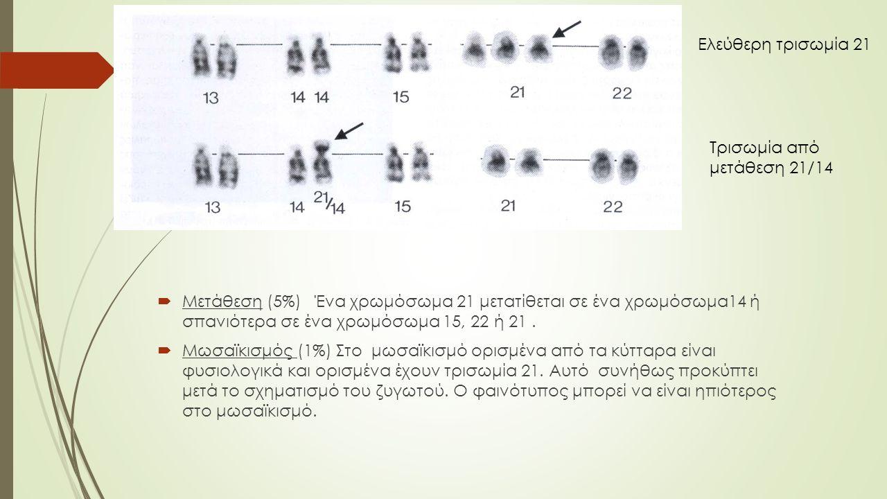  Μετάθεση (5%) Ένα χρωμόσωμα 21 μετατίθεται σε ένα χρωμόσωμα14 ή σπανιότερα σε ένα χρωμόσωμα 15, 22 ή 21.  Μωσαϊκισμός (1%) Στο μωσαϊκισμό ορισμένα