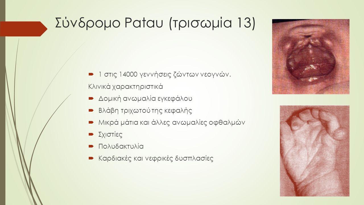 Σύνδρομο Patau (τρισωμία 13)  1 στις 14000 γεννήσεις ζώντων νεογνών. Κλινικά χαρακτηριστικά  Δομική ανωμαλία εγκεφάλου  Βλάβη τριχωτού της κεφαλής