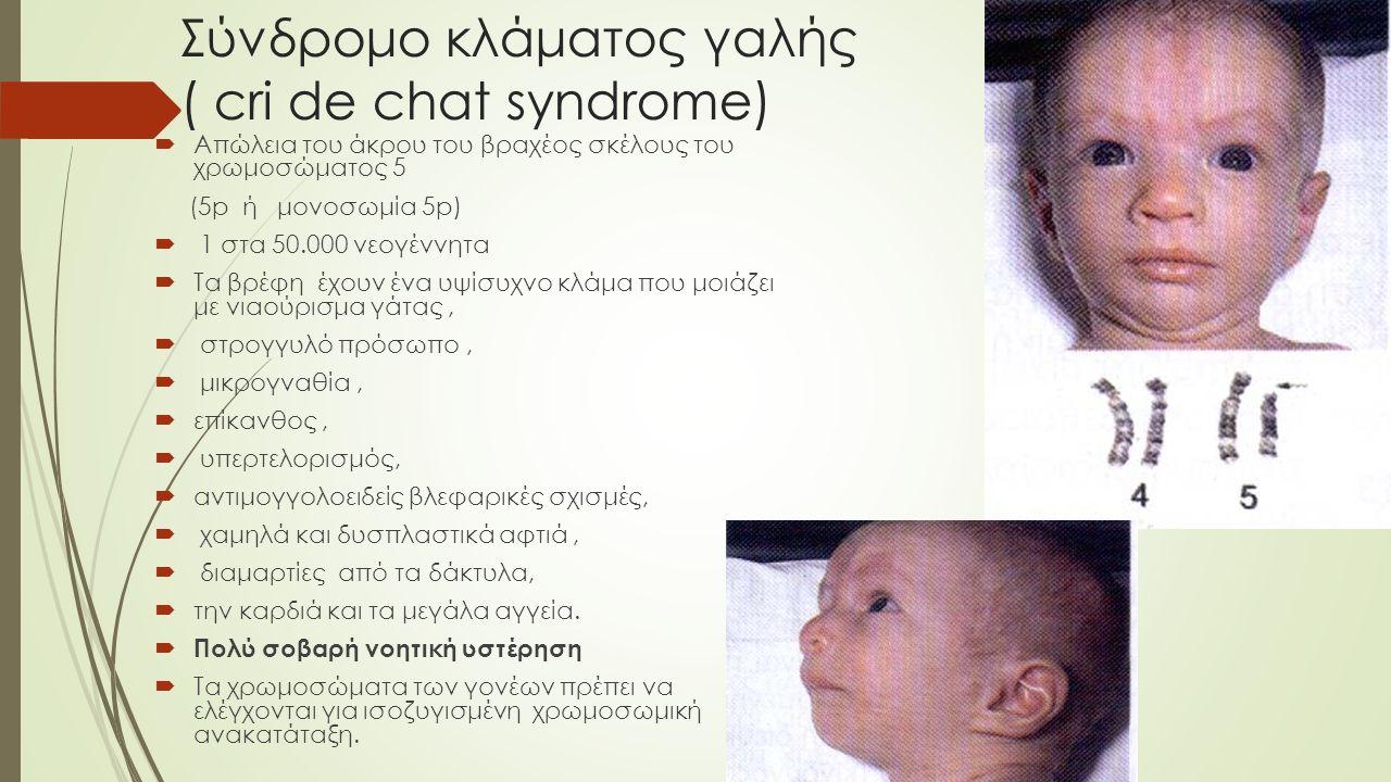 Σύνδρομο κλάματος γαλής ( cri de chat syndrome)  Απώλεια του άκρου του βραχέος σκέλους του χρωμοσώματος 5 (5p ή μονοσωμία 5p)  1 στα 50.000 νεογέννη
