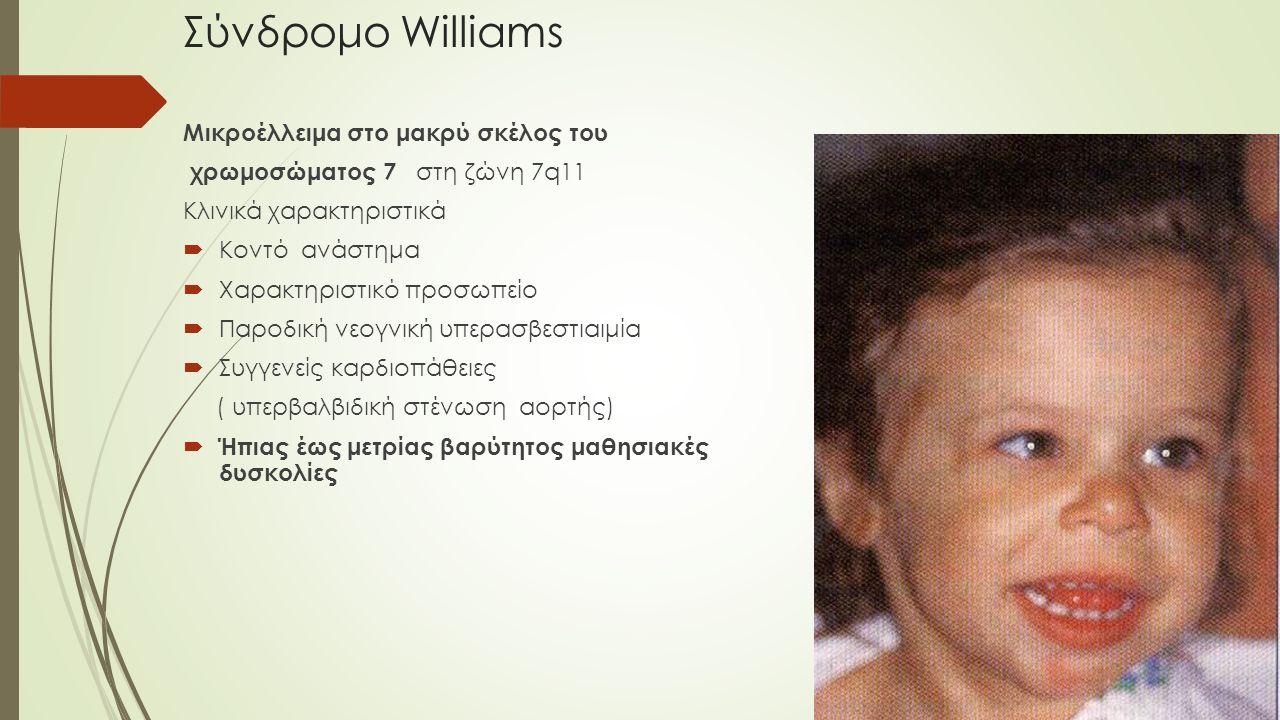 Σύνδρομο Williams Μικροέλλειμα στο μακρύ σκέλος του χρωμοσώματος 7 στη ζώνη 7q11 Κλινικά χαρακτηριστικά  Κοντό ανάστημα  Χαρακτηριστικό προσωπείο 