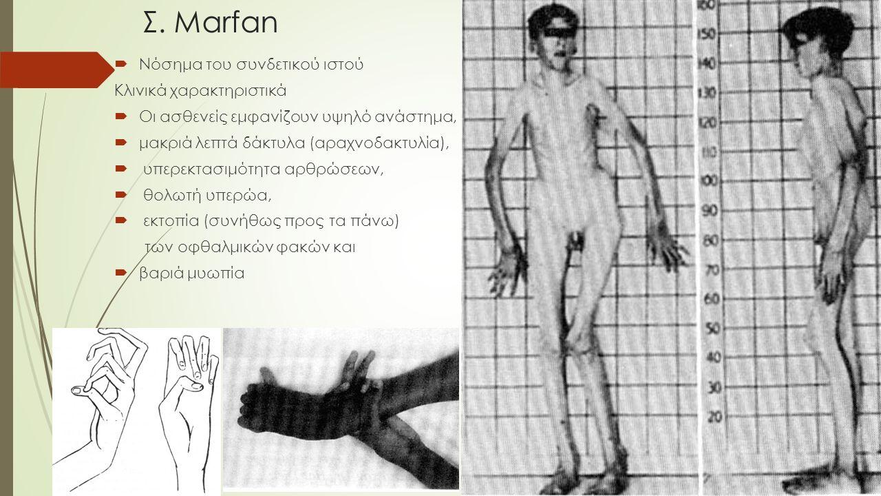 Σ. Marfan  Νόσημα του συνδετικού ιστού Κλινικά χαρακτηριστικά  Οι ασθενείς εμφανίζουν υψηλό ανάστημα,  μακριά λεπτά δάκτυλα (αραχνοδακτυλία),  υ