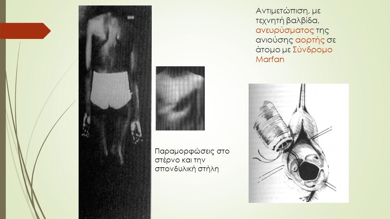 Αντιμετώπιση, με τεχνητή βαλβίδα, ανευρύσματος της ανιούσης αορτής σε άτομο με Σύνδρομο Marfan Παραμορφώσεις στο στέρνο και την σπονδυλική στήλη