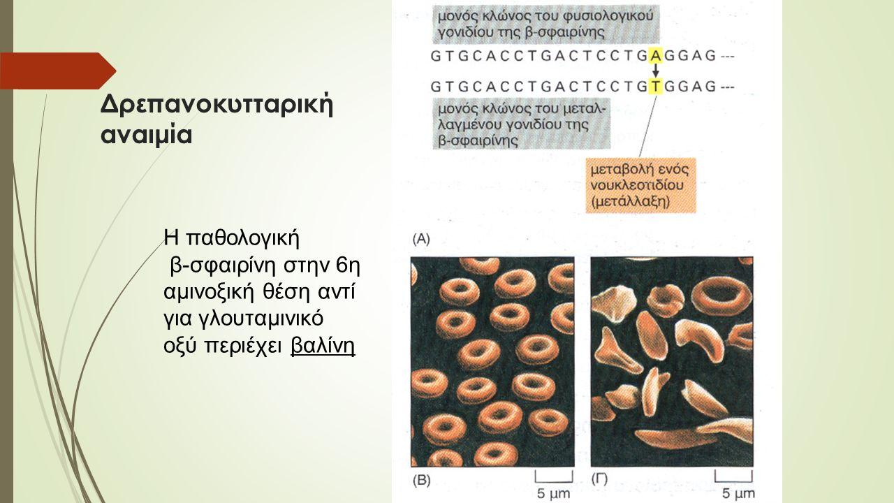 Δρεπανοκυτταρική αναιμία Η παθολογική β-σφαιρίνη στην 6η αμινοξική θέση αντί για γλουταμινικό οξύ περιέχει βαλίνη