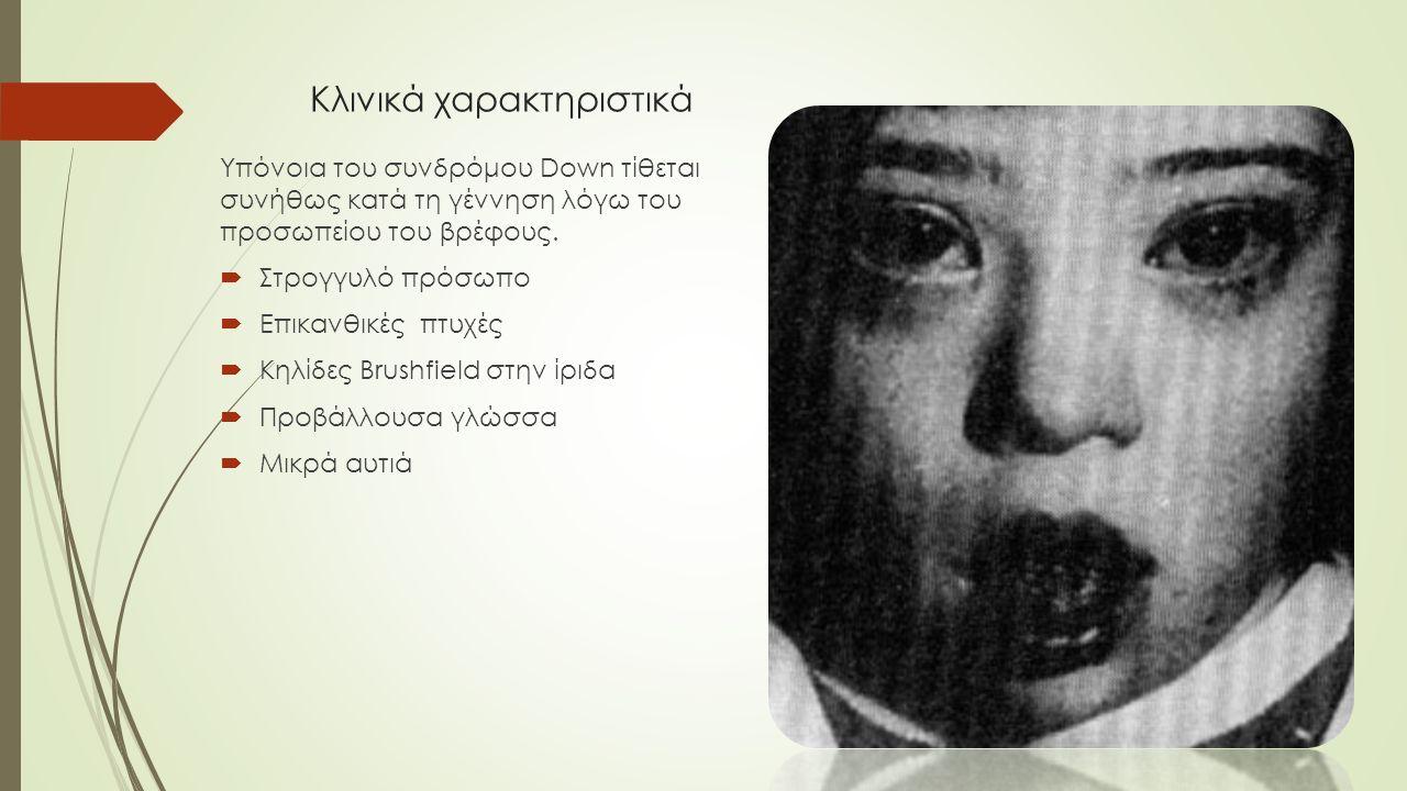 Κλινικά χαρακτηριστικά Υπόνοια του συνδρόμου Down τίθεται συνήθως κατά τη γέννηση λόγω του προσωπείου του βρέφους.  Στρογγυλό πρόσωπο  Επικανθικές π