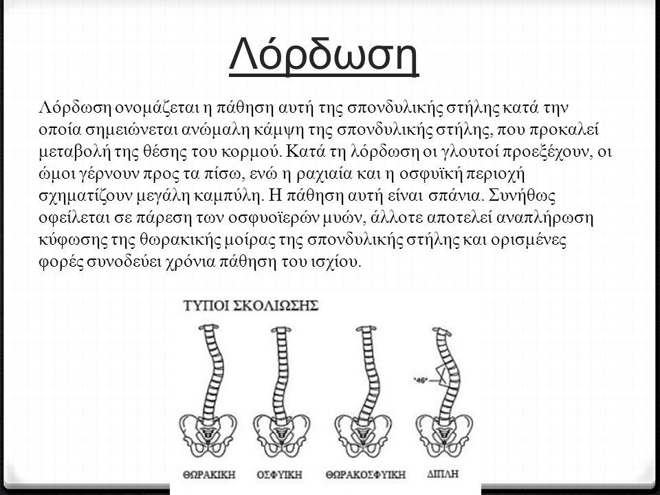 Λόρδωση Λόρδωση ονομάζεται η πάθηση αυτή της σπονδυλικής στήλης κατά την οποία σημειώνεται ανώμαλη κάμψη της σπονδυλικής στήλης, που προκαλεί μεταβολή της θέσης του κορμού.