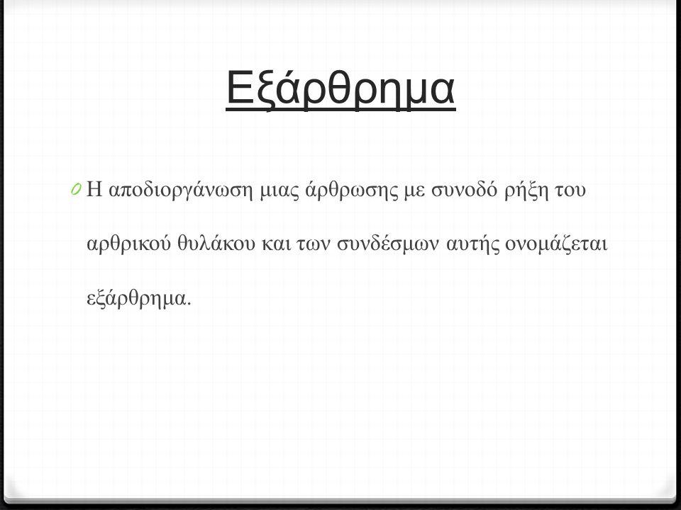 Εξάρθρημα 0 Η αποδιοργάνωση μιας άρθρωσης με συνοδό ρήξη του αρθρικού θυλάκου και των συνδέσμων αυτής ονομάζεται εξάρθρημα.