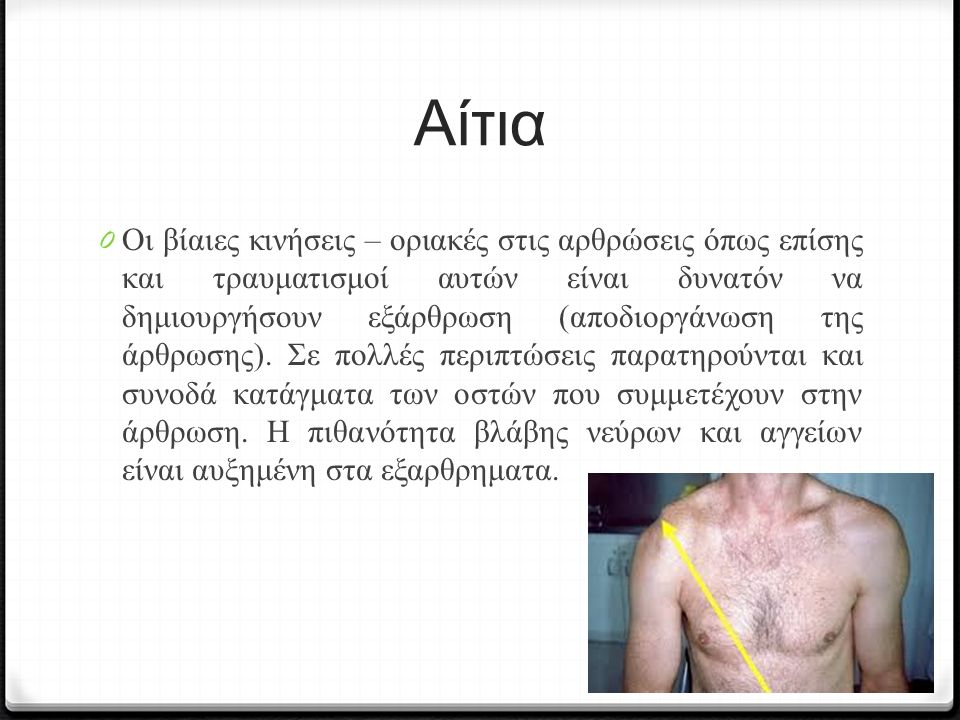 Αίτια 0 Οι βίαιες κινήσεις – οριακές στις αρθρώσεις όπως επίσης και τραυματισμοί αυτών είναι δυνατόν να δημιουργήσουν εξάρθρωση (αποδιοργάνωση της άρθρωσης).