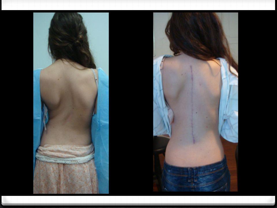 Ενδείξεις και Συμπτώματα Τα χαρακτηριστικά ενός εγκαύματος εξαρτώνται από το βάθος του.
