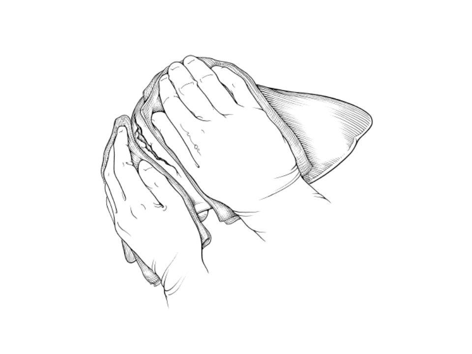Χειρουργική τεχνική αιμόσταση Αιμορραγία από αγγείο Απολίνωση* αγγείου με Ράμμα Κλιπ Κάποια Μορφή ενέργειας (διαθερμία ρεύματος, υπερήχων) * Σύγκλειση