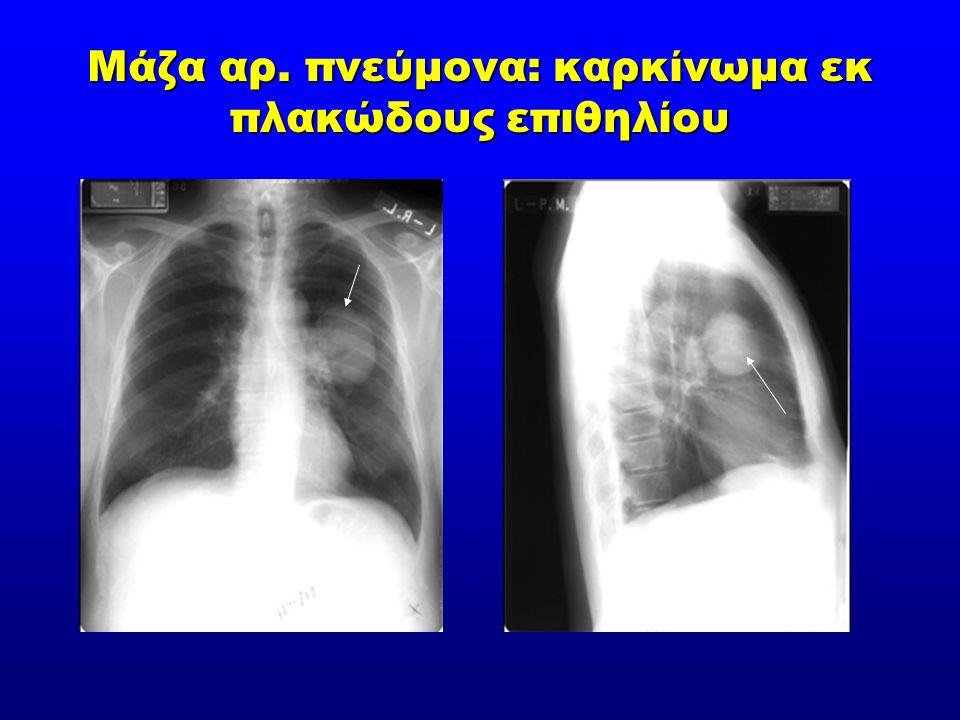 Μάζα αρ. πνεύμονα: καρκίνωμα εκ πλακώδους επιθηλίου