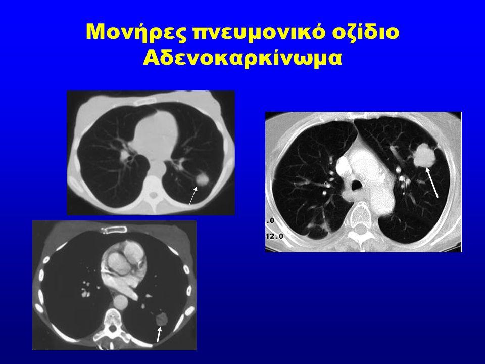 Μονήρες πνευμονικό οζίδιο Αδενοκαρκίνωμα