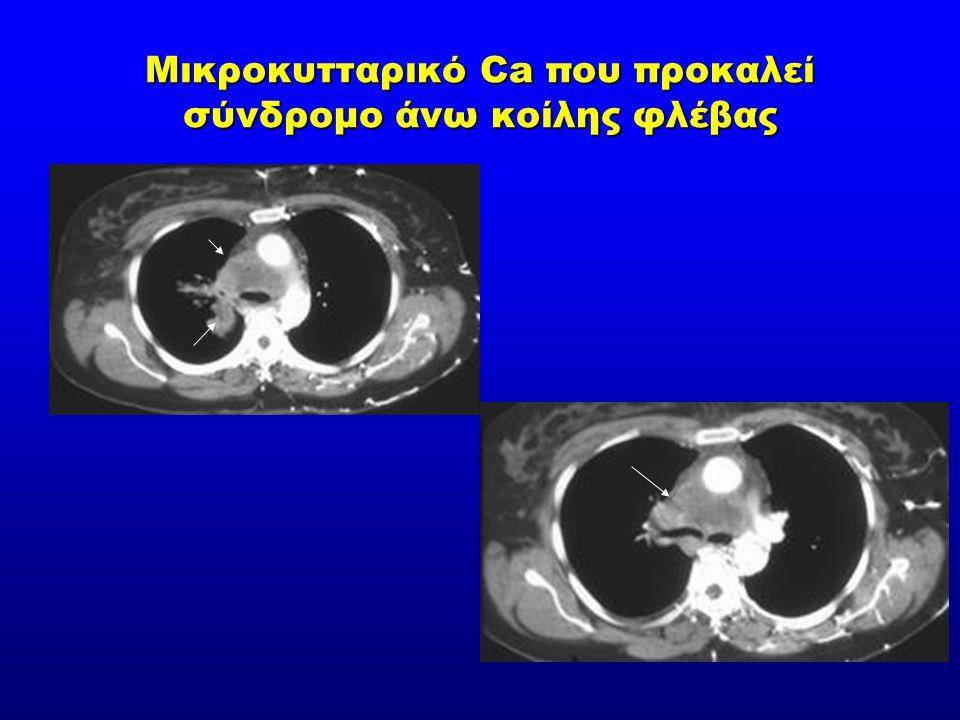 Μικροκυτταρικό Ca που προκαλεί σύνδρομο άνω κοίλης φλέβας