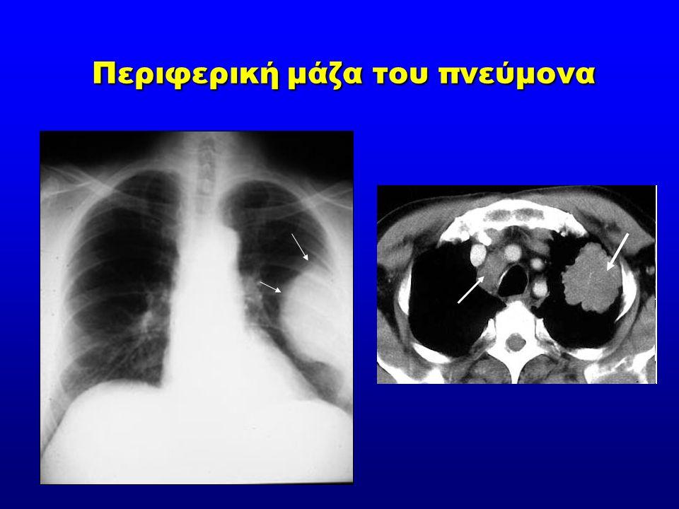Περιφερική μάζα του πνεύμονα Περιφερική μάζα του πνεύμονα