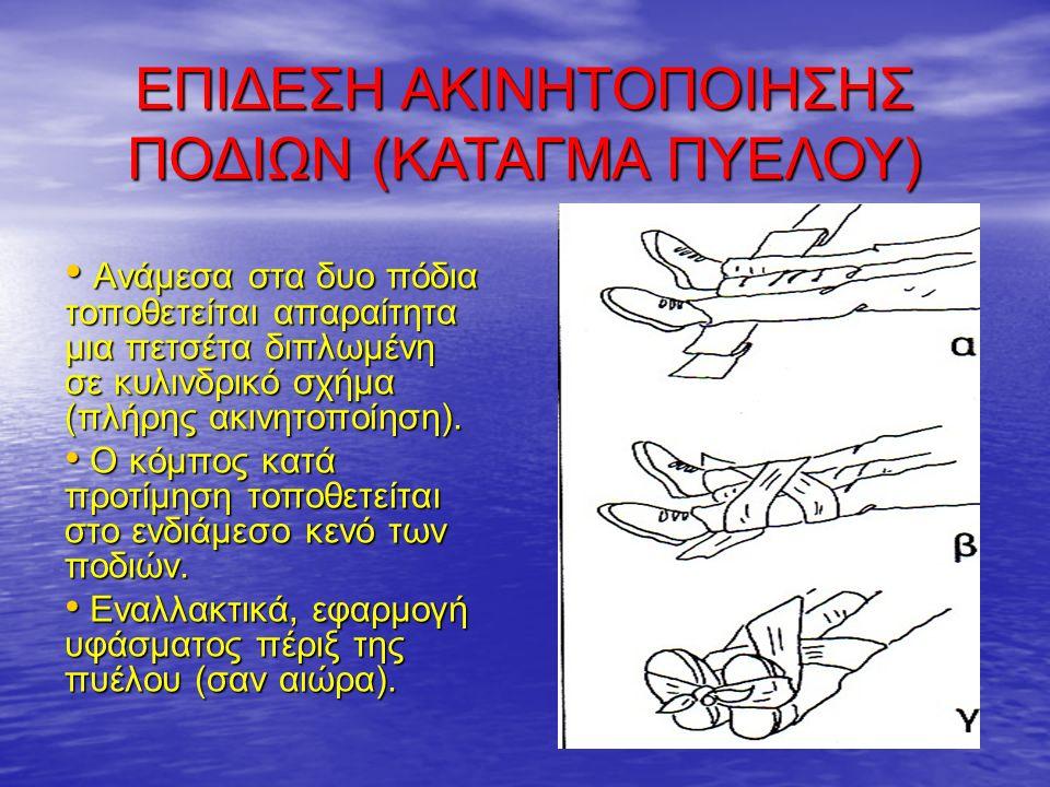 Ανάμεσα στα δυο πόδια τοποθετείται απαραίτητα μια πετσέτα διπλωμένη σε κυλινδρικό σχήμα (πλήρης ακινητοποίηση).