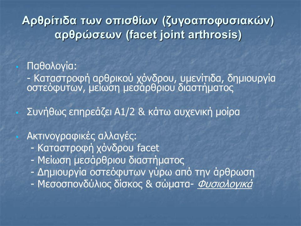 Αρθρίτιδα των οπισθίων (ζυγοαποφυσιακών) αρθρώσεων (facet joint arthrosis)   Παθολογία: - Καταστροφή αρθρικού χόνδρου, υμενίτιδα, δημιουργία οστεόφυ