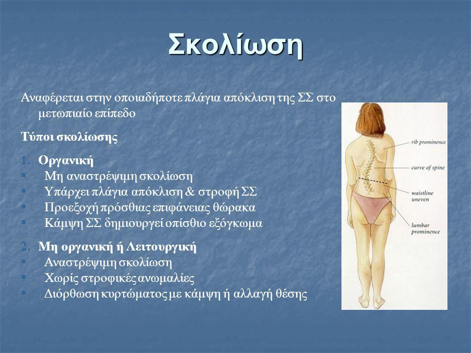 Σκολίωση Αναφέρεται στην οποιαδήποτε πλάγια απόκλιση της ΣΣ στο μετωπιαίο επίπεδο Τύποι σκολίωσης 1.Οργανική  Μη αναστρέψιμη σκολίωση  Υπάρχει πλάγι