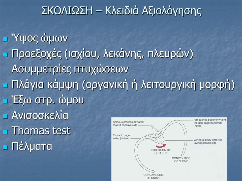 ΣΚΟΛΙΩΣΗ – Κλειδιά Αξιολόγησης Ύψος ώμων Ύψος ώμων Προεξοχές (ισχίου, λεκάνης, πλευρών) Προεξοχές (ισχίου, λεκάνης, πλευρών) Ασυμμετρίες πτυχώσεων Πλά