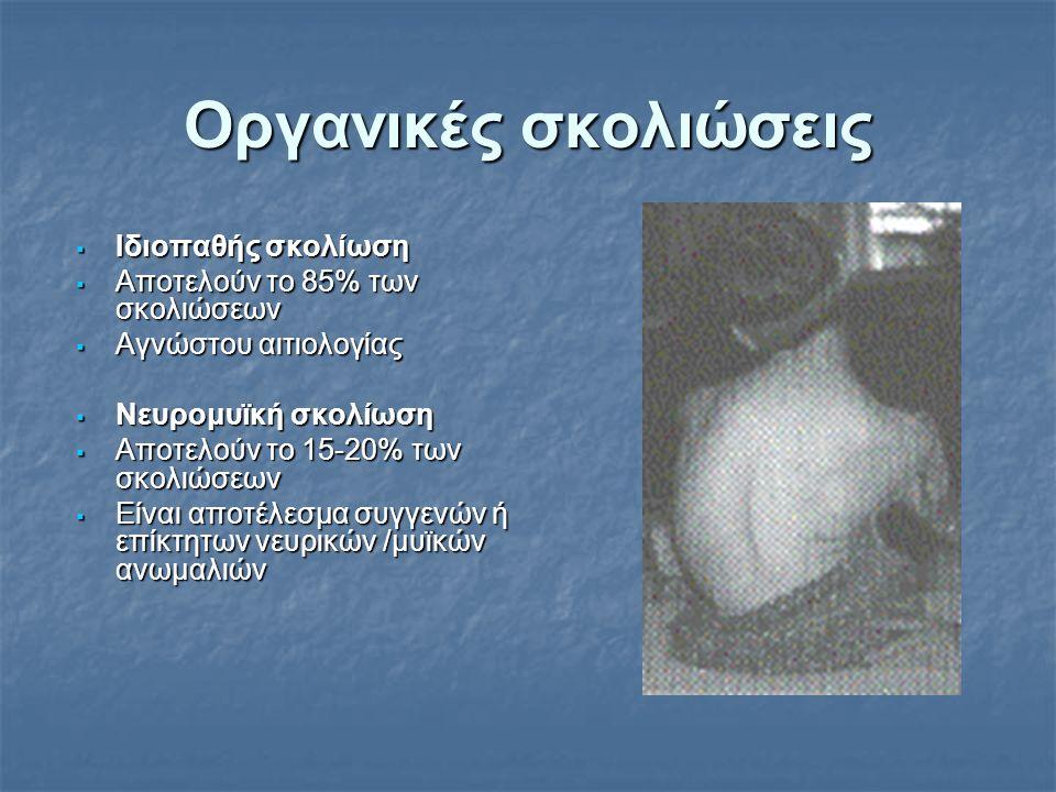 Οργανικές σκολιώσεις  Ιδιοπαθής σκολίωση  Αποτελούν το 85% των σκολιώσεων  Αγνώστου αιτιολογίας  Νευρομυϊκή σκολίωση  Αποτελούν το 15-20% των σκο