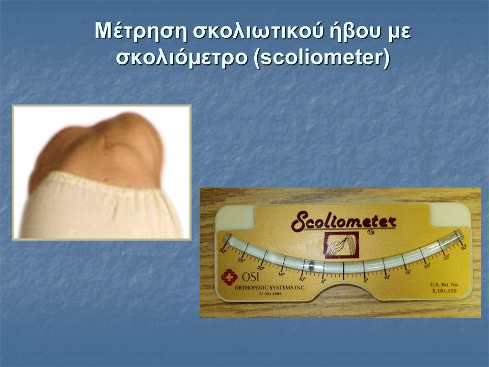 Μέτρηση σκολιωτικού ήβου με σκολιόμετρο (scoliometer)