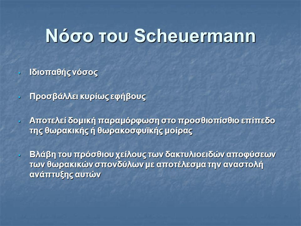 Νόσο του Scheuermann  Ιδιοπαθής νόσος  Προσβάλλει κυρίως εφήβους  Αποτελεί δομική παραμόρφωση στο προσθιοπίσθιο επίπεδο της θωρακικής ή θωρακοσφυϊκ