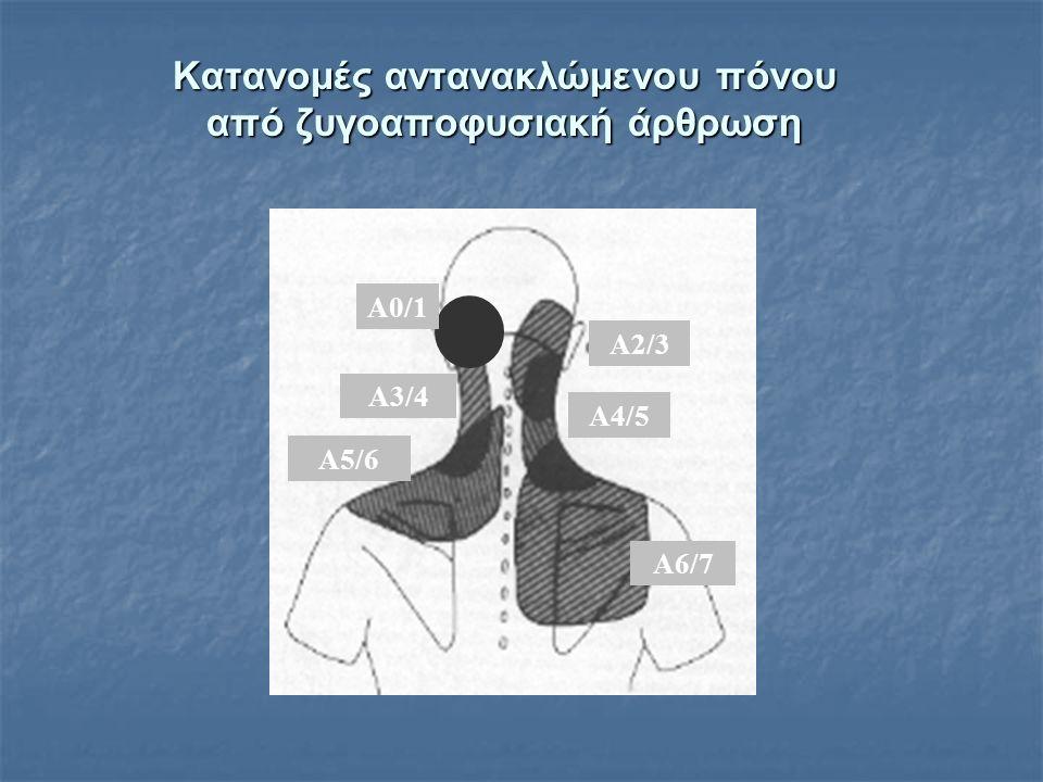 Κατανομές αντανακλώμενου πόνου από ζυγοαποφυσιακή άρθρωση A3/4 A5/6 A2/3 A4/5 A6/7 A0/1A0/1