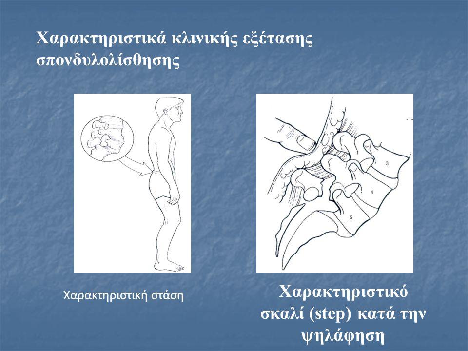Χαρακτηριστικά κλινικής εξέτασης σπονδυλολίσθησης Χαρακτηριστική στάση Χαρακτηριστικό σκαλί (step) κατά την ψηλάφηση