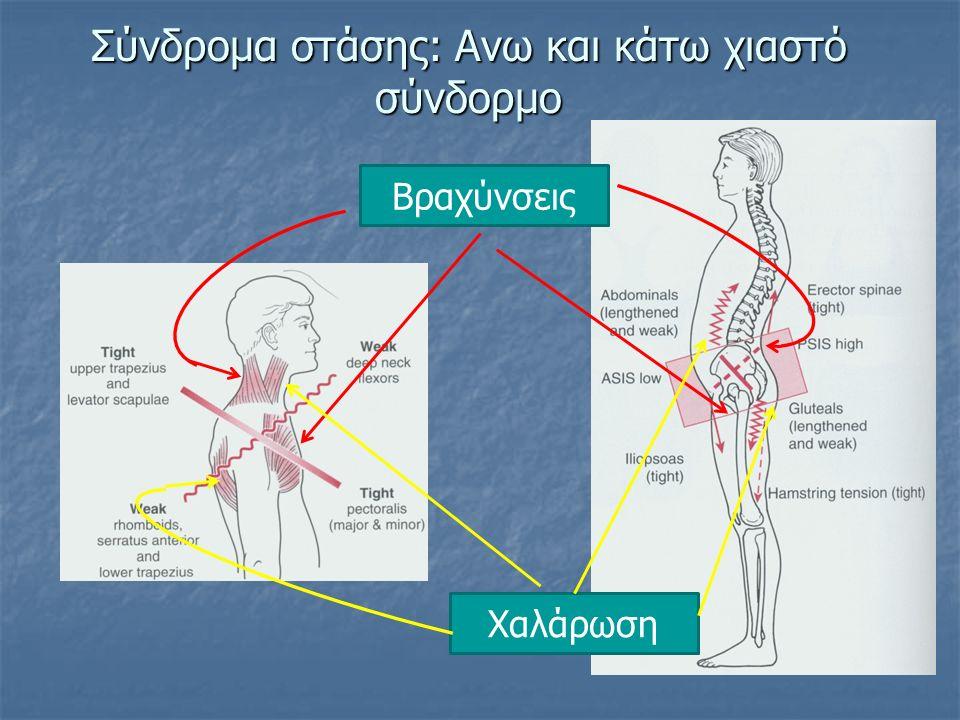 Σύνδρομα στάσης: Ανω και κάτω χιαστό σύνδορμο Βραχύνσεις Χαλάρωση