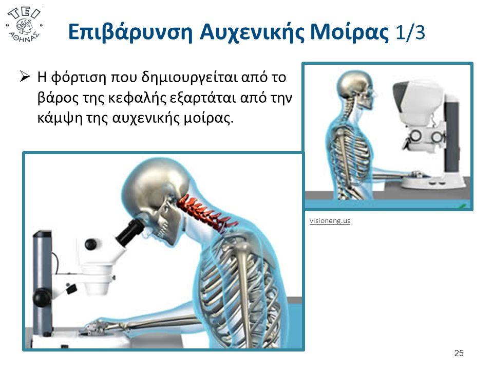 Επιβάρυνση Αυχενικής Μοίρας 1/3 25 visioneng.us  Η φόρτιση που δημιουργείται από το βάρος της κεφαλής εξαρτάται από την κάμψη της αυχενικής μοίρας.