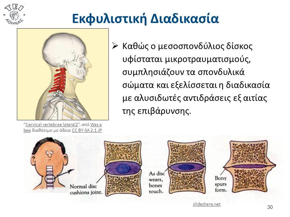 Εκφυλιστική Διαδικασία  Καθώς ο μεσοσπονδύλιος δίσκος υφίσταται μικροτραυματισμούς, συμπλησιάζουν τα σπονδυλικά σώματα και εξελίσσεται η διαδικασία με αλυσιδωτές αντιδράσεις εξ αιτίας της επιβάρυνσης.