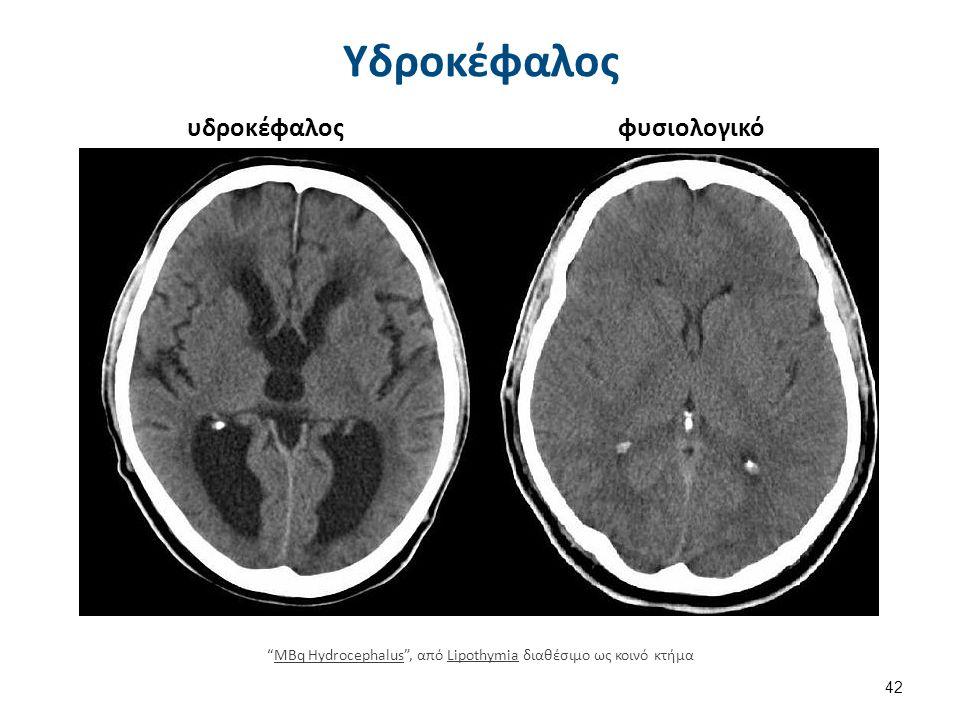"""Υδροκέφαλος 42 """"MBq Hydrocephalus"""", από Lipothymia διαθέσιμο ως κοινό κτήμαMBq HydrocephalusLipothymia υδροκέφαλοςφυσιολογικό"""