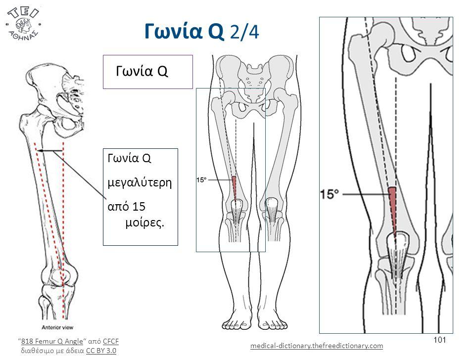 Γωνία Q 2/4 101 medical-dictionary.thefreedictionary.com Γωνία Q μεγαλύτερη από 15 μοίρες.