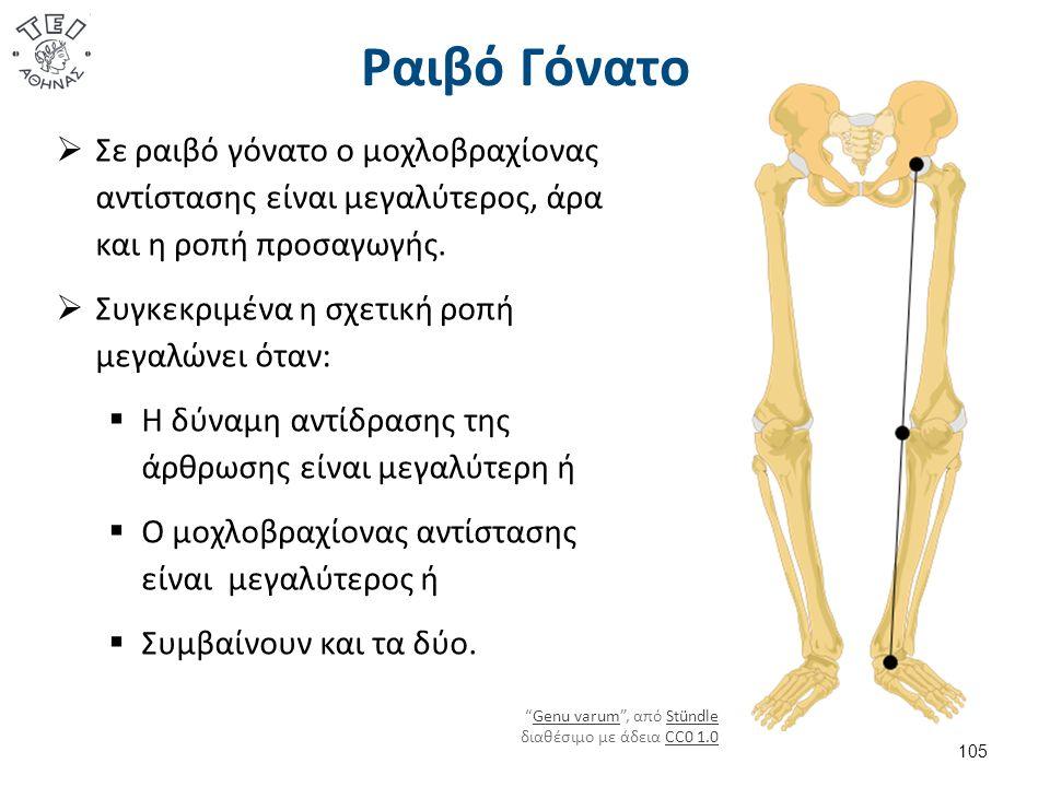 Ραιβό Γόνατο  Σε ραιβό γόνατο ο μοχλοβραχίονας αντίστασης είναι μεγαλύτερος, άρα και η ροπή προσαγωγής.