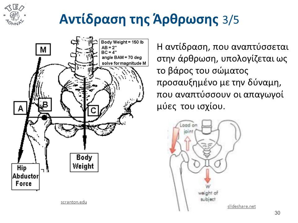 Αντίδραση της Άρθρωσης 3/5 30 scranton.edu slideshare.net Η αντίδραση, που αναπτύσσεται στην άρθρωση, υπολογίζεται ως το βάρος του σώματος προσαυξημένο με την δύναμη, που αναπτύσσουν οι απαγωγοί μύες του ισχίου.